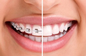 dental-braces