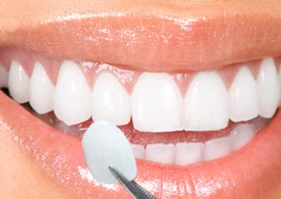 Estetică Dentară – Fațete dentare ceramice