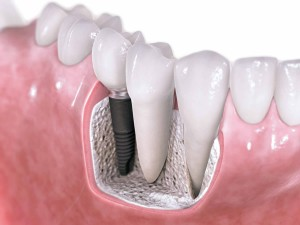 Dental-Implant 2